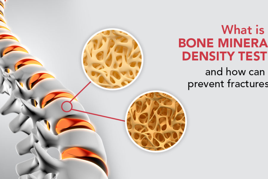 Bone Mineral Density Test